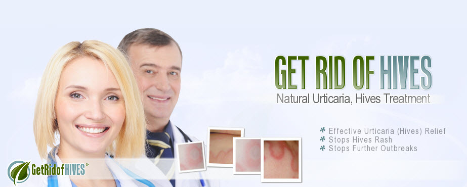 how to get rid of Chronic Urticaria fast - Natural chronic hives treatment